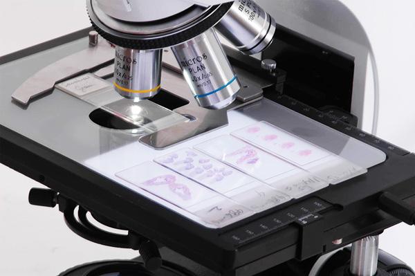 Гистология при аденомиозе