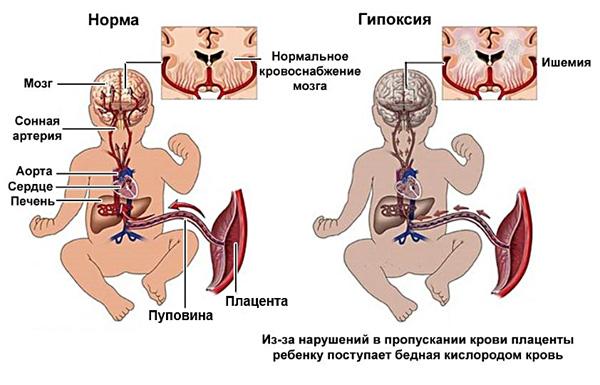 Узловой аденомиоз во время беременности может привести к гипоксии плода