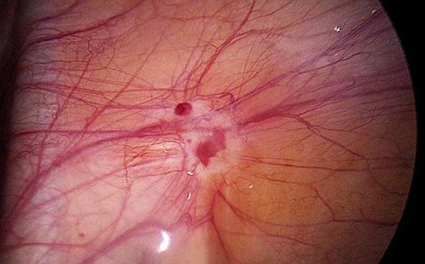 Гистероскопия при эндометриозе