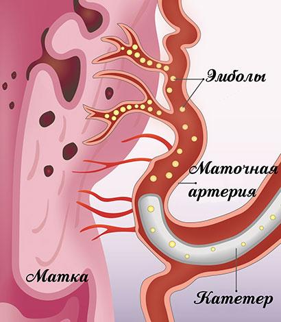 Эмболизациия маточных артерий