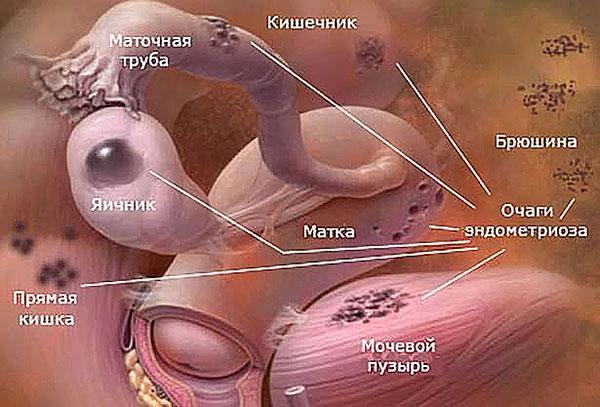 Локализация очагов эндометриоза в органах малого таза