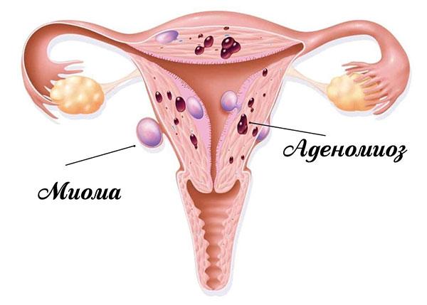 Миома на фоне эндометриоза
