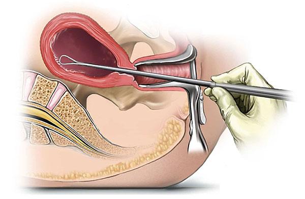 Эндометриоз, возникший после выскабливания матки