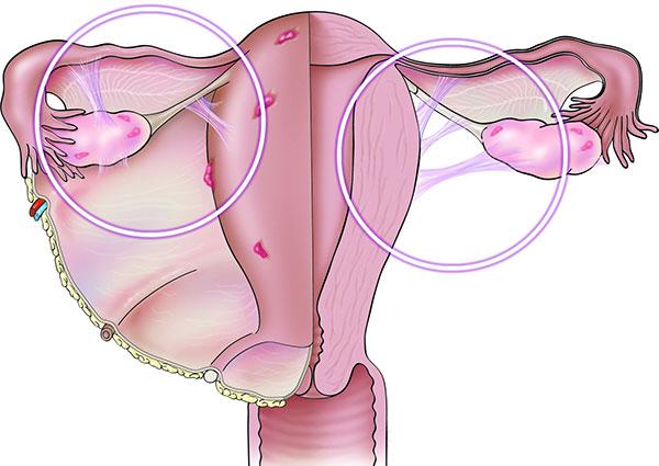 Нередко при эндометриозе формируются спайки