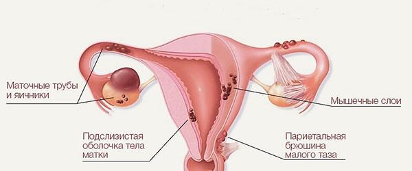 Очаги эндометриоза