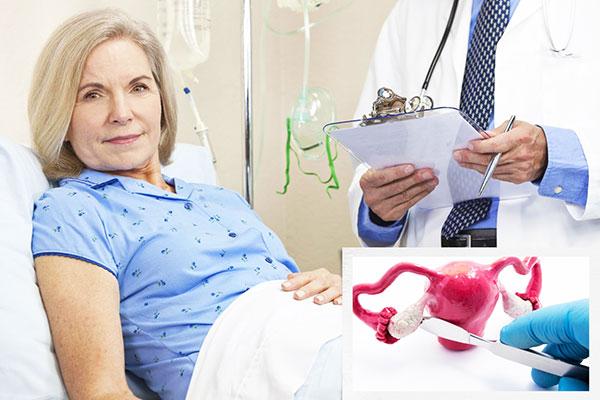Овариоэктомия при эндометриоме в период климакса