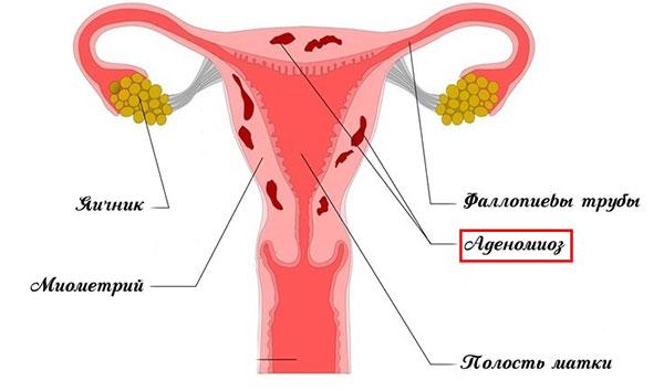 Аденомиоз (внутренний эндометриоз)