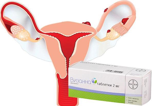 Выясняем, в каких случаях при эндометриозе назначают Визанну и как препарат воздействует на организм женщины...