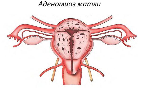 Визанна при аденомиозе