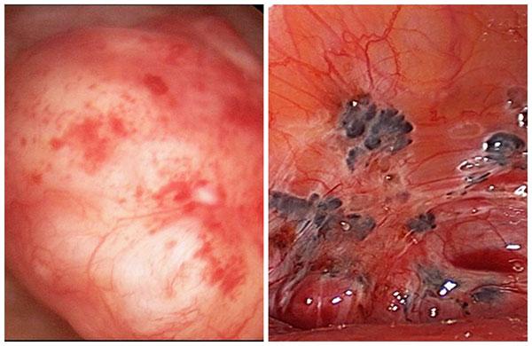 Гистероскопия аденомиоза