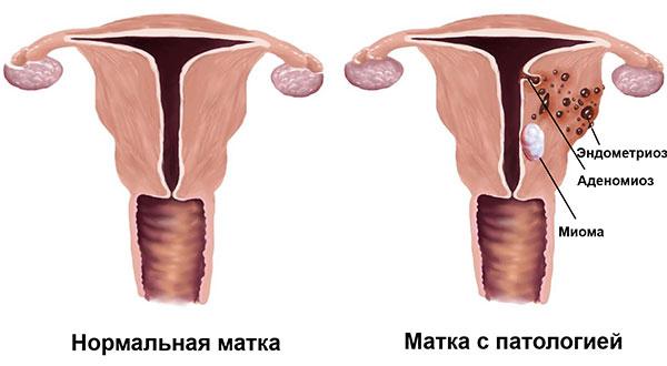 Сочетанная патология (эндометриоз, аденомиоз и миома матки)