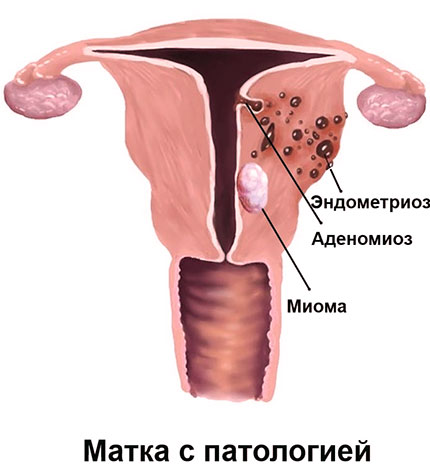 При сочетании эндометриоза с миомой Дюфастон применяют редко