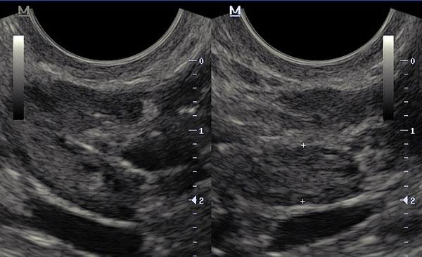 Снимок УЗИ ретроцервикального эндометриоза