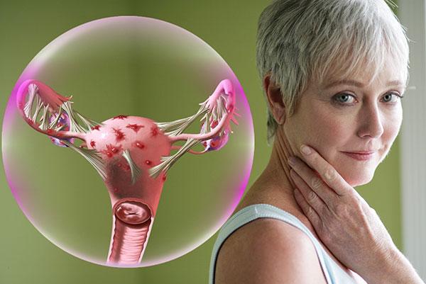Рассматриваем особенности лечения эндометриоза у женщин после 40 лет...