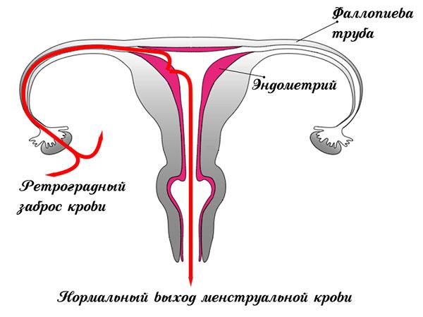 Рефлюкс менструальной крови