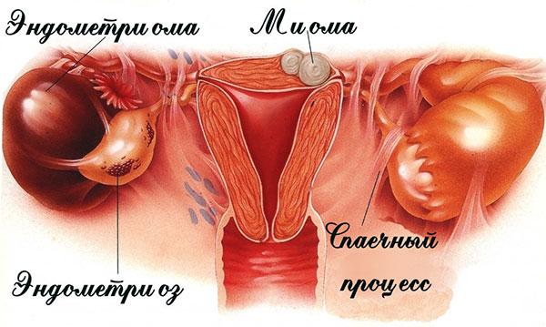 Эндометриоз в сочетании с миомой матки