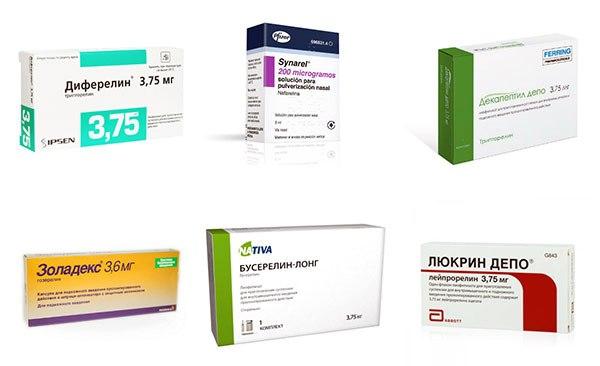 Агонисты гонадотропин-рилизинг гормона при эндометриозе