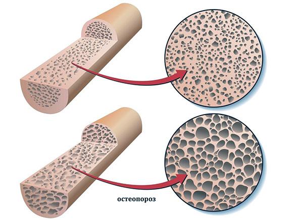 Остеопороз как следствие долгого применения АГнРГ