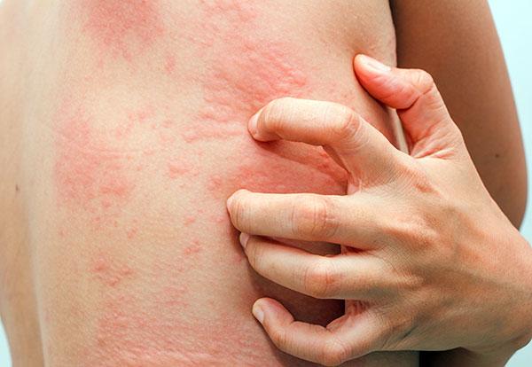Аллергия на средства народной медицины