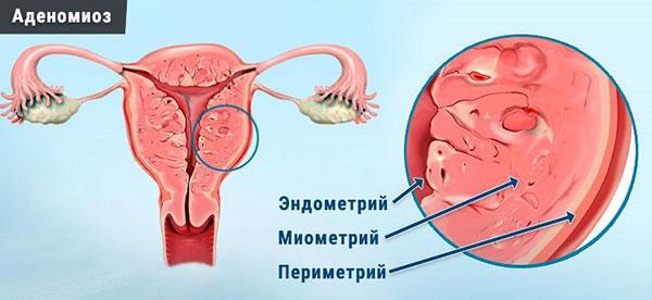 Стадии аденомиоза