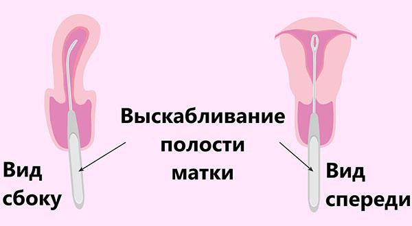 Выскабливание матки при кровотечении