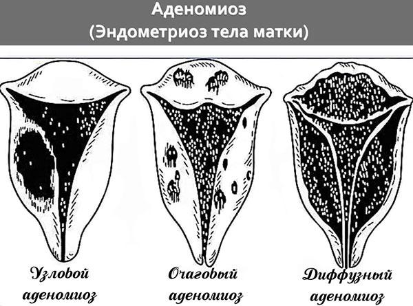 Формы аденомиоза