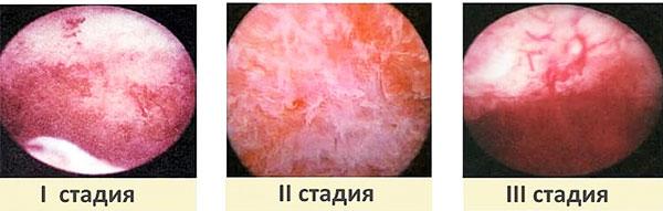 Гистероскопия разных стадий аденомиоза