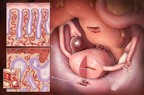 Эндометриоидные гетеротопии
