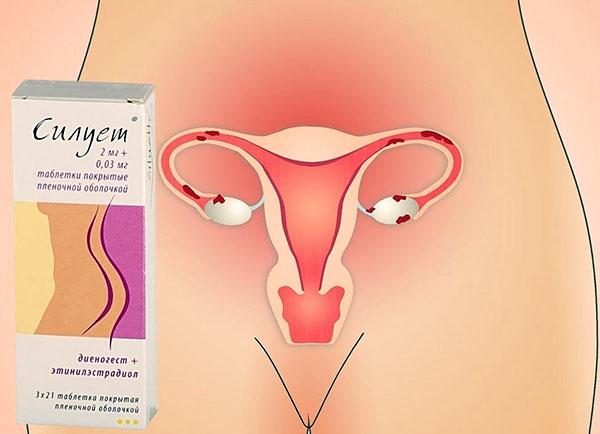 Выясняем, как препарат Силуэт работает при эндометриозе и чем он отличается от других гормональных средств...