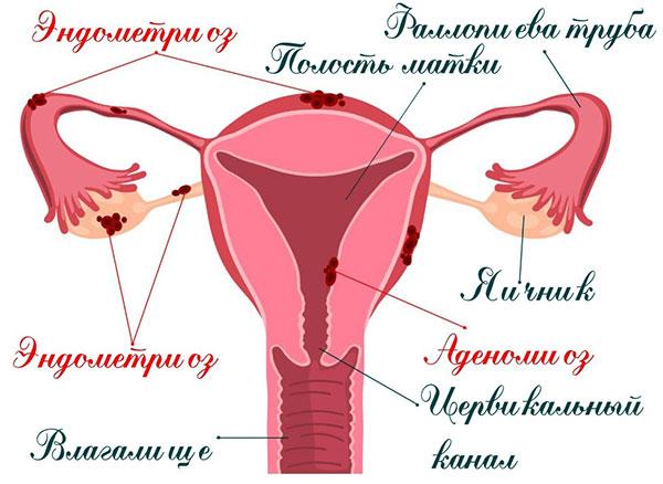 Силуэт при эндометриозе и аденомиозе