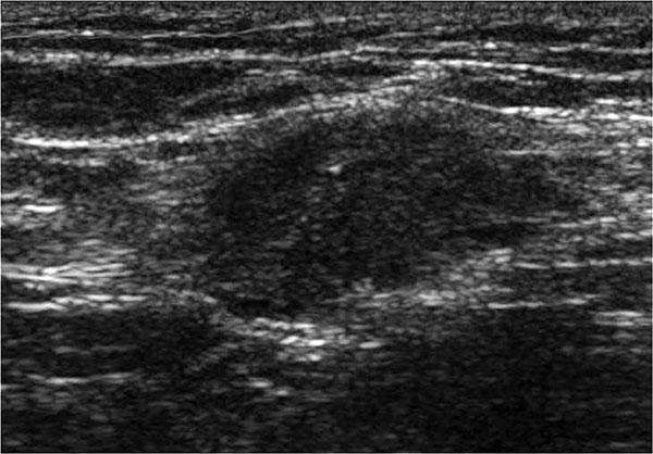 УЗИ эндометриоза брюшной стенки
