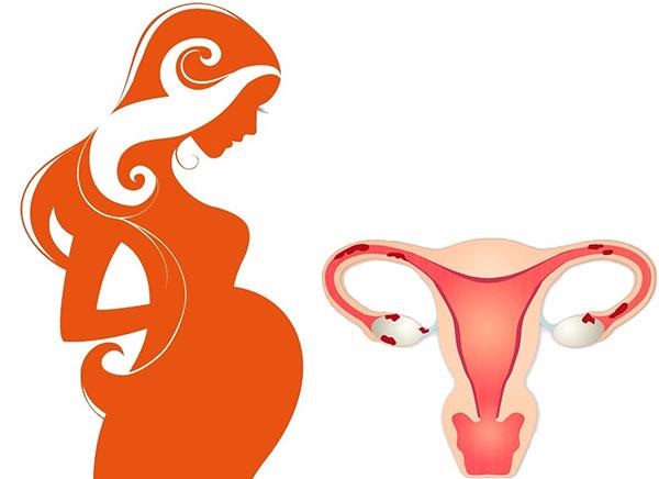 Выясняем, возможна ли беременность при эндометриозе и как она протекает...