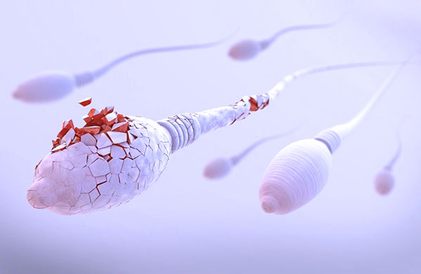 Гибель сперматозоидов во влагалище женщины при эндометриозе