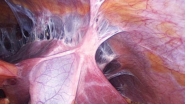 endometrioz posle kesareva secheniya 6 - Эндометриоз послеоперационного рубца передней брюшной стенки лечение