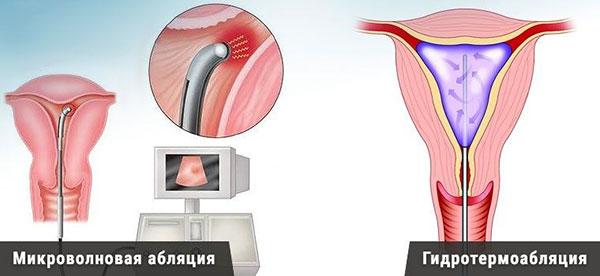 Аблация эндометрия