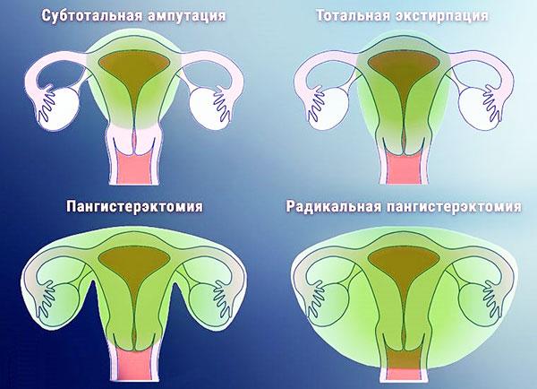 Виды удаления матки