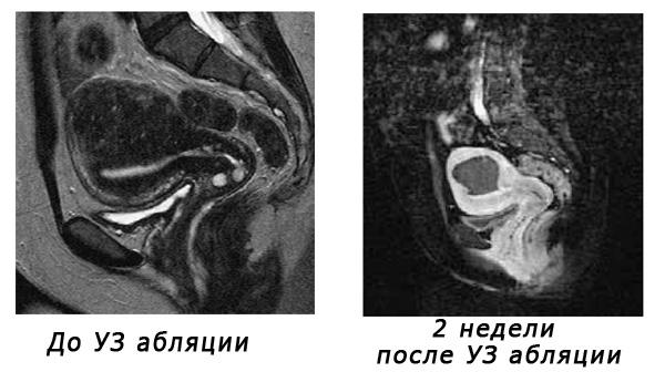 Лечение аденомиоза методом ФУЗ абляции