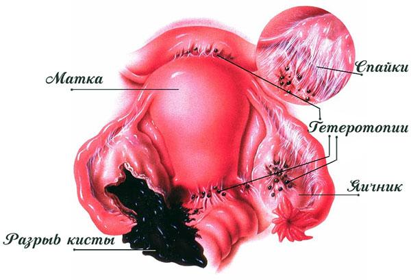 Разрыв эндометриоидной кисты