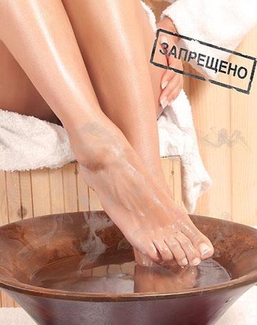 Парить ноги при эндометриозе запрещено