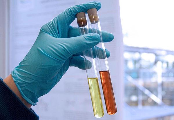 Кровь в моче - признак эндометриоза мочевого пузыря
