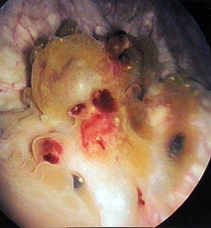 Очаги эндометриоза на мочевом пузыре