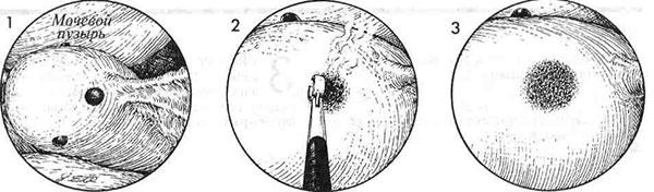 Схема хирургического удаления гетеротопий на мочевом пузыре