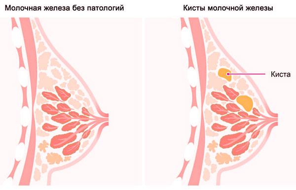 Утрожестан при болезнях молочных желез