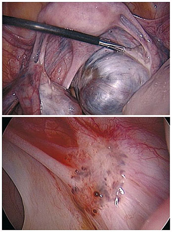 Эндометриоз придатков при лапароскопии