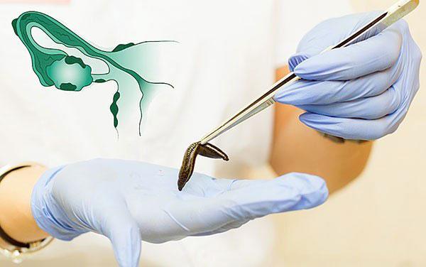 Разбираемся, как работает гирудотерапия и в каких случаях эта процедура назначается при эндометриозе?