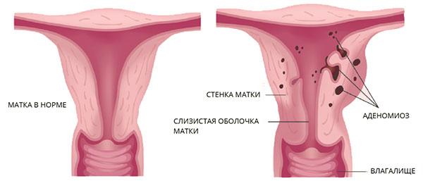 Аденомиоз (внутренний эндометриоз) - разрастание эндометрия в полости матки
