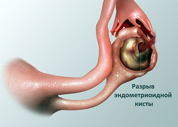 Эндометриоидную кисту нельзя лечить пиявками