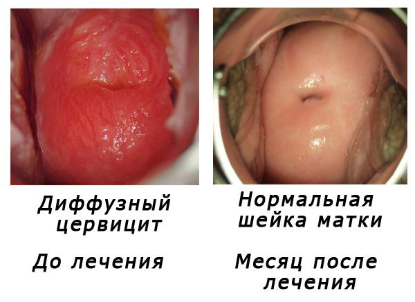 Лечение хронического цервицита методом HIFU