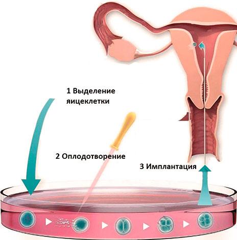 ЭКО при бесплодии на фоне эндометриоза