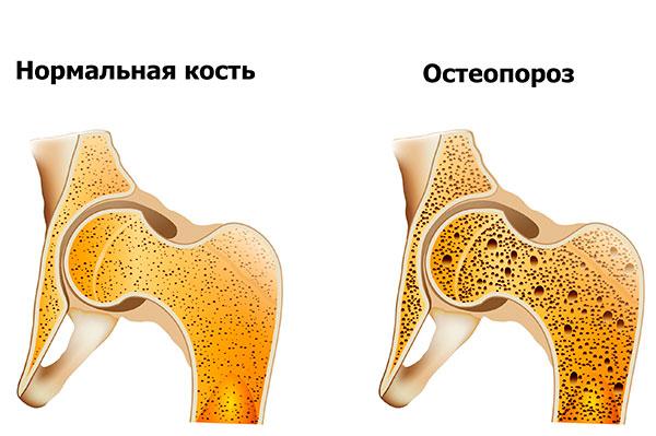 Остеопороз как следствие применения препаратов Гн-РГ